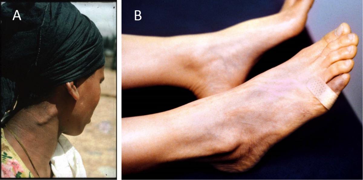 Neurological Manifestations of Leprosy | International Textbook of