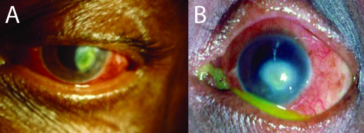 The Eye in Leprosy | International Textbook of Leprosy